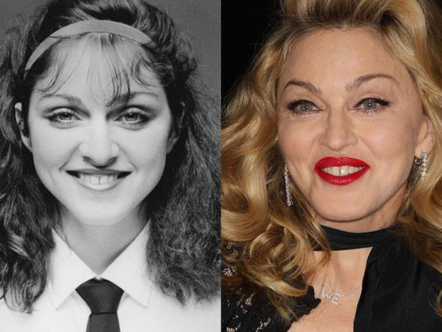Madonna in 1978 and 2012.