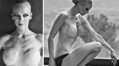 Model reveals mastectomy in brave shoot