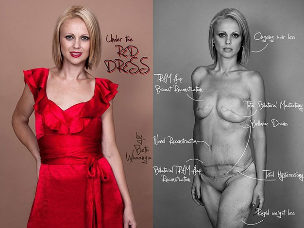Beth Whaanga enlisted photographer friend Nadia Masot to shoot the images as part of their Under the Red Dress campaign.