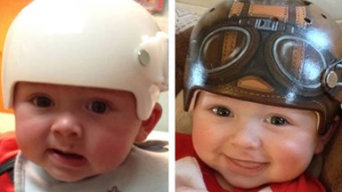 Artist makes kids' medical helmets look cool