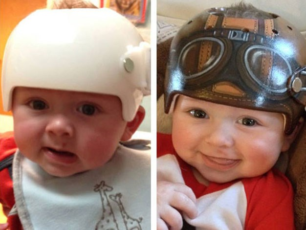 Before and after: Artist Paula Strawn paints children's medical helmets to make them look much less boring.