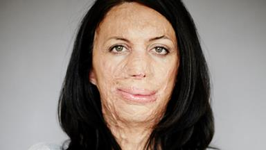 Ultramarathon fire victim Turia Pitt reaches multi-million dollar settlement