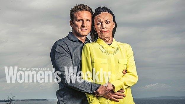 Turia Pitt and her partner Michael Hoskins. Photography by Tim Bauer. Styling by Jamela Duncan.