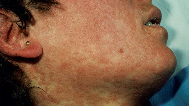 The red measles rash, stock image