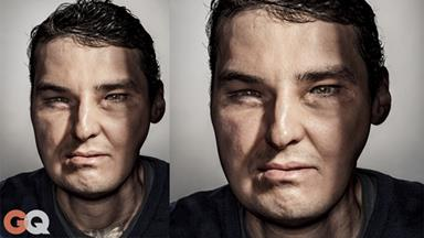 Face transplant recipient on GQ's groundbreaking cover