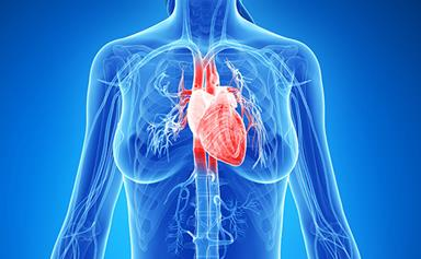 Heart attacks: Women are worse off than men