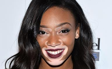 Canadian model with vitiligo is the new face of Desigual