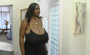 Woman has breast reduction on her triple N sized chest