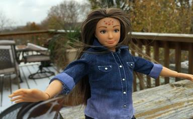 Normal Barbie comes with acne and cellulite