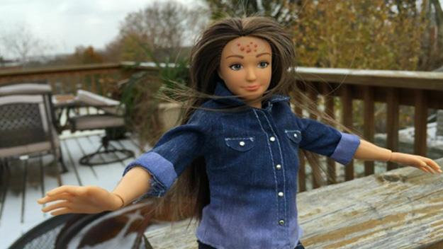 Barbie doll has acne, stretch marks and cellulite