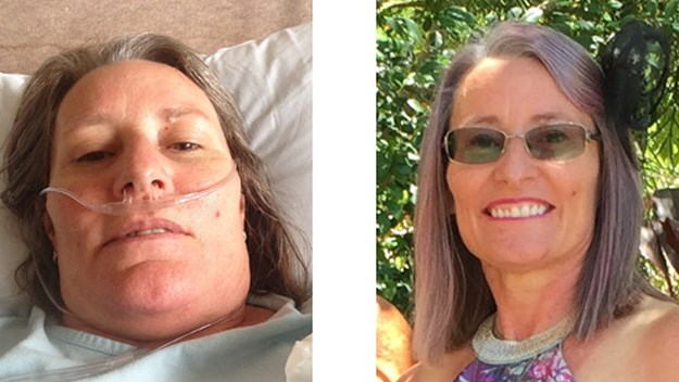 Left: Gai on oxygen in hospital. Right: Recent photo of Gai looking better than ever.