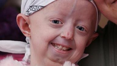 Gone too soon - brave teenager Hayley Okines loses battle with premature ageing disease, progeria