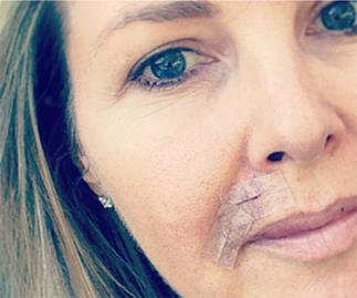 "Georgie Gardner: ""Please be sun smart and get your skin checked"""