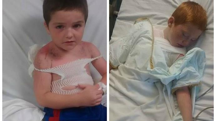 Boys suffer third degree burns at daycare