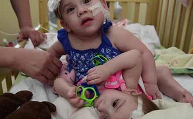"""US couple prepare to separate their """"perfect"""" conjoined twins"""