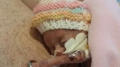 Premature baby fits wedding ring on arm