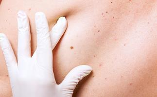 Doctor looking at skin cancer