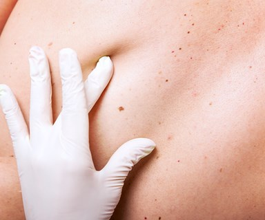 Spots, moles and freckles: How to spot skin cancer