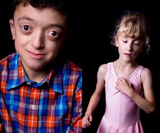 The Rare Project: woman photographs children with rare disabilities