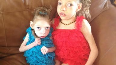 Miracle sisters battle rare genetic disorder
