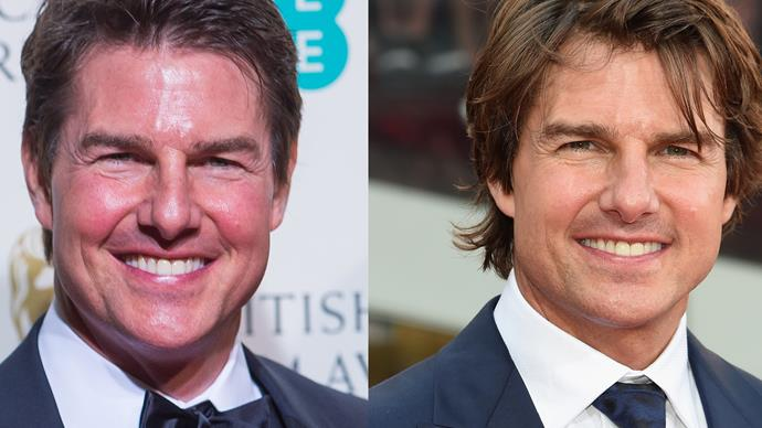 "Internet goes berserk over Tom Cruise's ""puffy"" face"