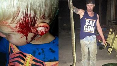 Giant snake attacks NSW boy as he sleeps