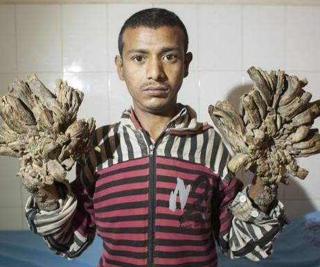 bangladesh's Tree Man
