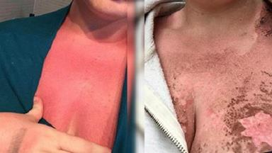 Melbourne woman burnt by sunscreen