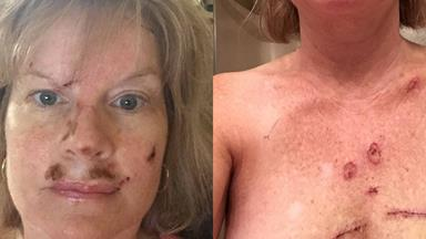 'This could be you': Woman shares shocking skin cancer selfies