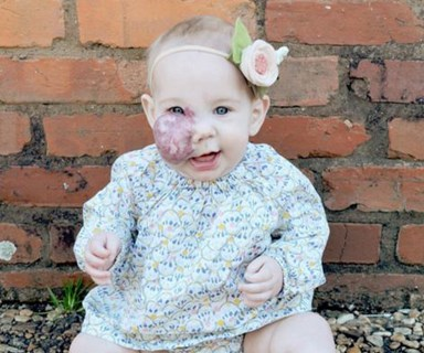 Mother's defence of daughter's birthmark goes viral
