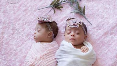 These twins with Down Syndrome are one in a million