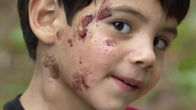 This boy's daycare scrubbed his face until it bled