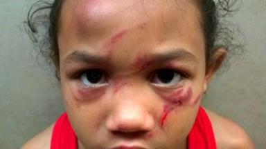 A schoolyard bully did this to a six-year-old girl