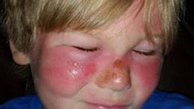 Boy suffers second degree burns after applying popular 50SPF sunscreen
