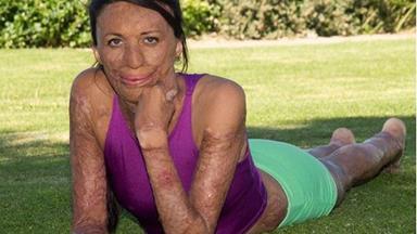 Burns survivor Turia Pitt to take on Ironman