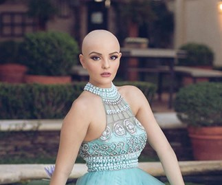 Model makes powerful statement after she lost her hair
