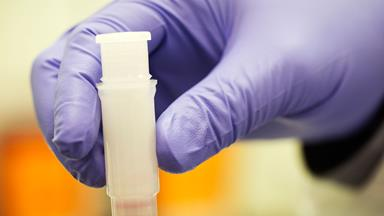 Have scientists figured out the mysterious cause for Crohn's Disease?