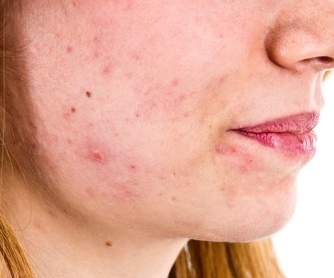 Acne breakthrough: revolutionary new treatments on the horizon