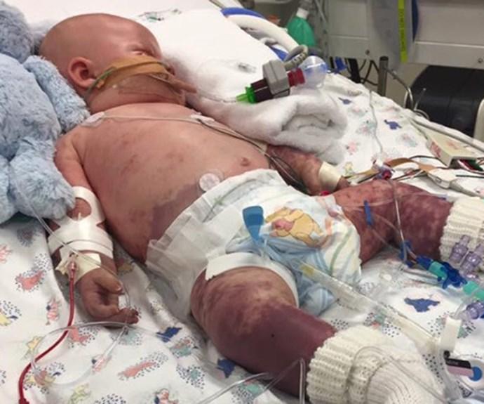 'Meningococcal hit my son like a wrecking ball': Parents' heartache over sick son