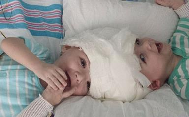 Beautiful moment conjoined twins see each other for the first time since they were separated