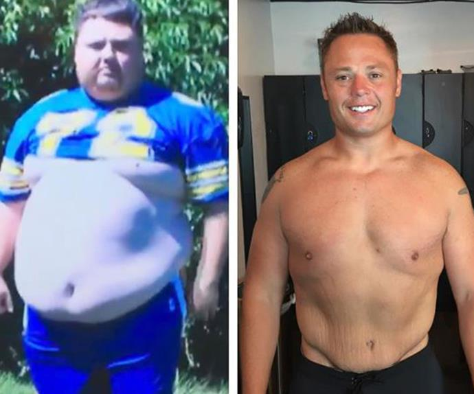 Bruce Pitcher on his incredible weightloss journey.
