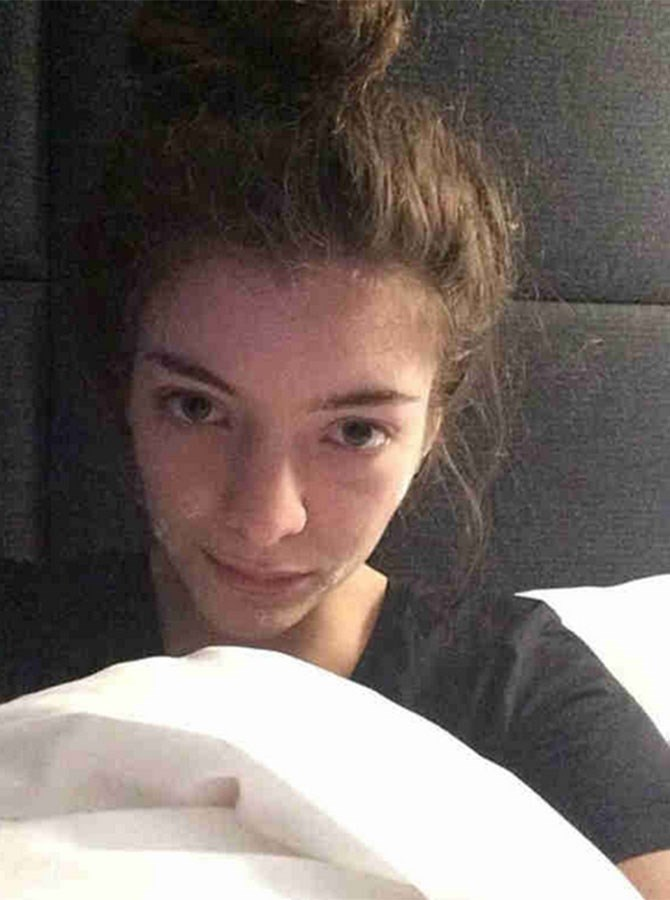 Lorde shows even multiple Grammy Award winners have to deal with pimples.