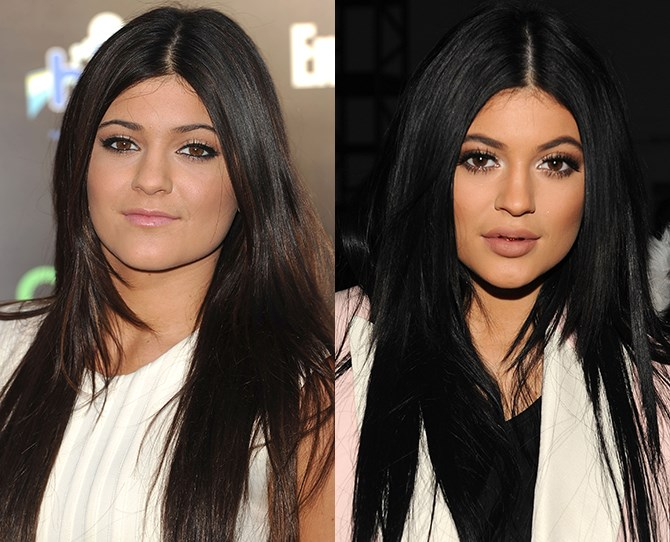Do we call them the Kardashian klan or the bevy of browed babes? Whatever the name, lil sis' Kylie Jenner has certainly made as many revolutions as the earth does round the sun. Our favourite beauty revamp of hers? Not her lips, but her sexily arched brows.