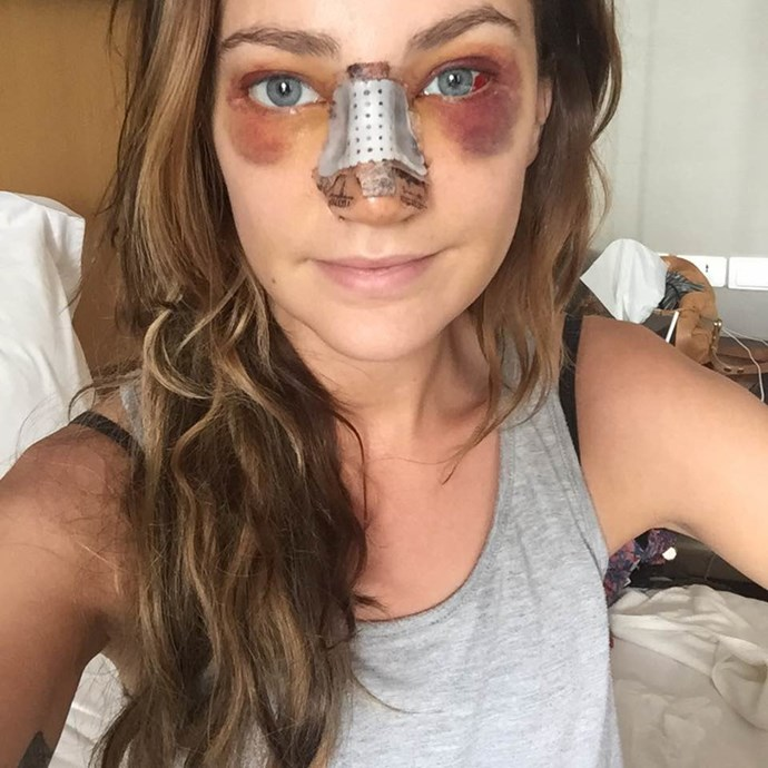 "Day five, post op: ""Feeling really good again. Flushing regularly is helping me breathe through my nose. We spent most the day lying by the pool, (yes my face was covered) just another relaxing day."""