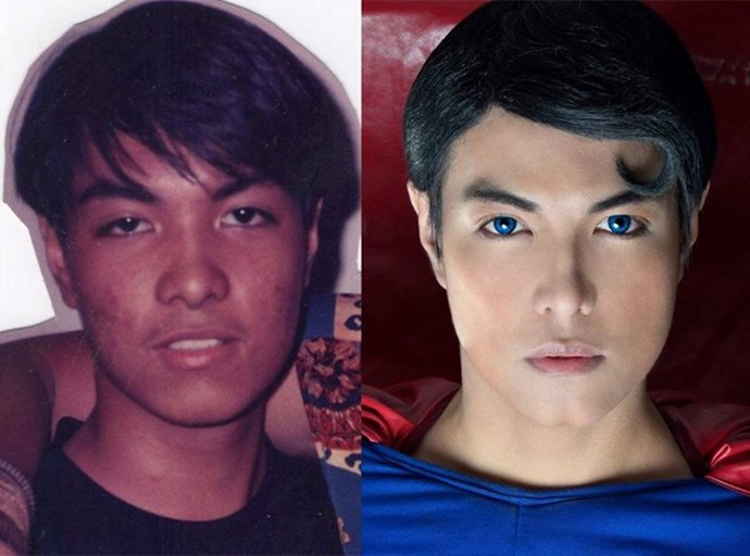"14. Meet the Filipino Clark Kent. Herbert Chavez, 37, of Calamba City in the Philippines, has been undergoing surgery for the past 18 years in an effort to resemble Superman. He's had nose jobs, skin whitening, liposuction, jaw realignment and fillers, and wears bright blue contacts. ""I like to show to the people, especially the children of the Phillipines, that I'm here. Superman is real,"" Chavez said. ""What I want is to give them inspiration. To give hope."" Estimated cost of surgeries: Around $7000."