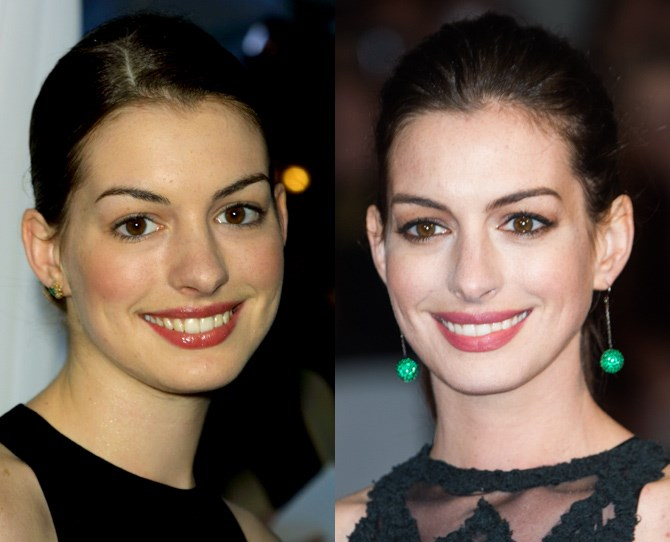 **Anne Hathaway**   <br> 2001 vs. now