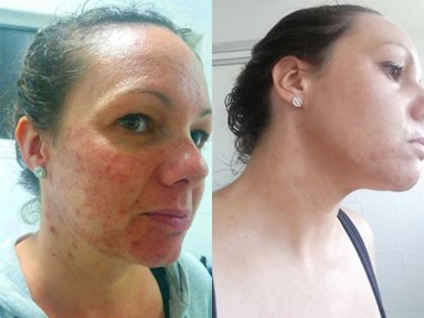 What it's really like to have acne in your 30s