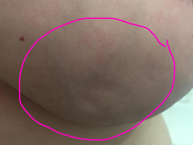 The important reason you need to see this woman's breast dimples