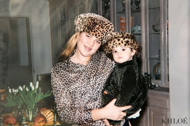 """Um, how come no one told me braces + all-over animal print wasn't a good look?!"" Khloe wrote with this snap she posted on Instagram. ""Leopard overload!!! But, how cute is Kendall?"""