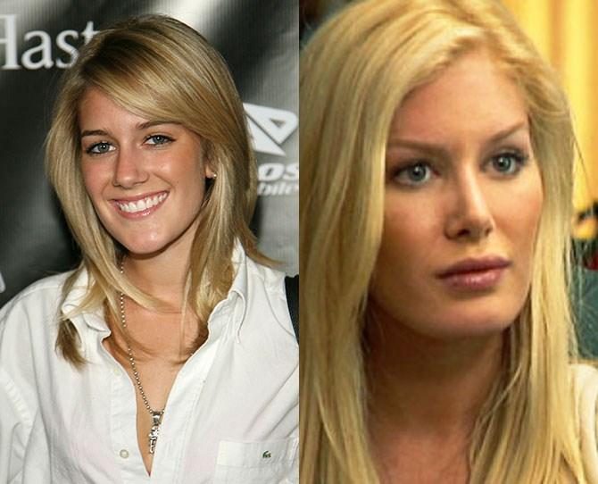 **Heidi Montag** ** ** **THEN**   She started out sweet then got together with tickledick Spencer Pratt and that's when shit hit the fan/we started getting really good TV. Then she married tickledick and got a shittonne of plastic surgery.